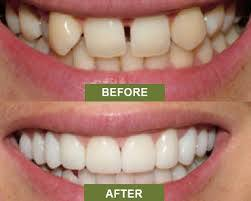 dental implants for chipped, damaged or gapped teeth in jonesboro, ar at parkey & davis dds