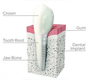 Dental implants, crowns and bridges are available in Jonesboro, AR at Parkey & Davis DDS.