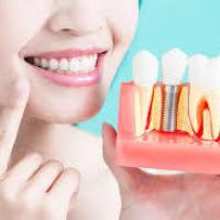 Cosmetic dentistry procedures at Parkey and Davis DDS in Jonesboro Arkansas.