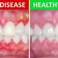 The difference between healthy gums and gum disease.